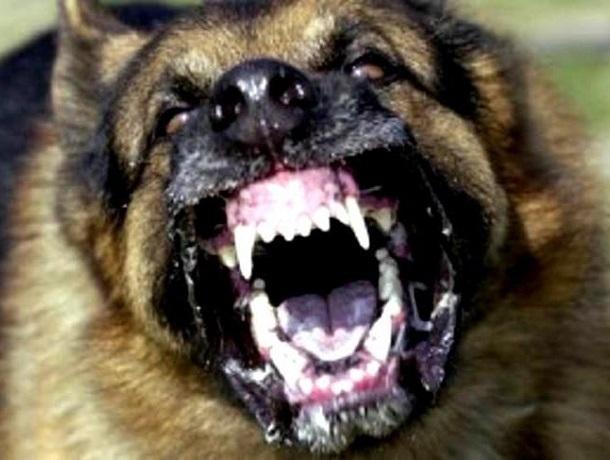Три десятка агрессивных собак набросились на 8- летнего ребенка в Шахтах